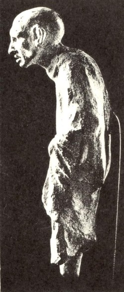 7β. Πήλινο αγαλμάτιο καμπουριασμένου γέρου, 3ος π.Χ. αιώνας, Σμύρνη
