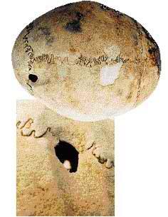25α.Κρανίο με επέμβαση από τα Άβδηρα, τέλος 7ου π.Χ. αιώνα