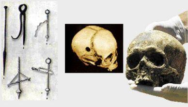 26α. Κρανίο με τρυπανισμό από τη Χίο, 3ος αιώνας π.Χ.