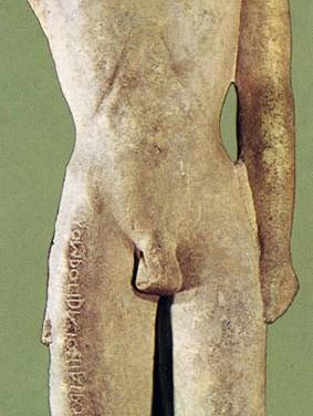 3α. Άγαλμα του γιατρού Σομβροτίδα από τα Μέγαρα Υβλαία της Σικελίας, 580-570 π.Χ., Συρακούσες